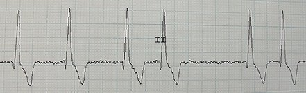 ECG trace of a dog with atrial fibrillation